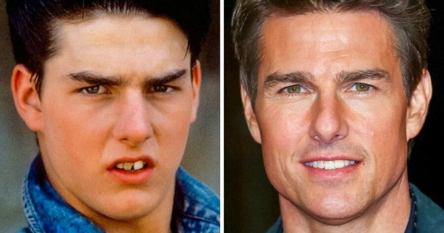 Fausses-dents-12-preuves-qu-un-beau-sourire-change-tout