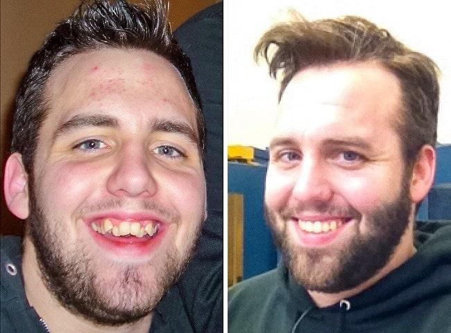 Jacob-dentiste