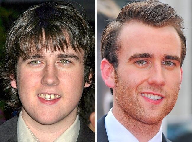 Matthew-Lewis-fausses-dents