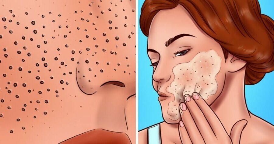 Pores-de-la-peau-8-erreurs-de-soin