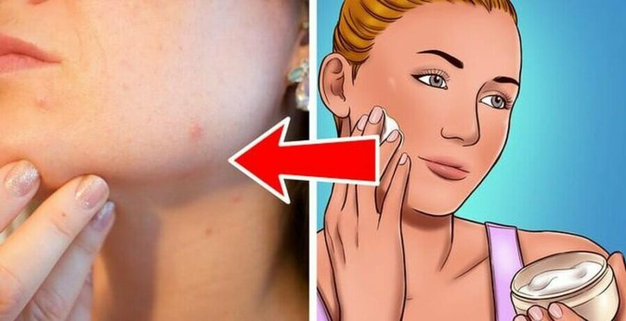 pores-produit