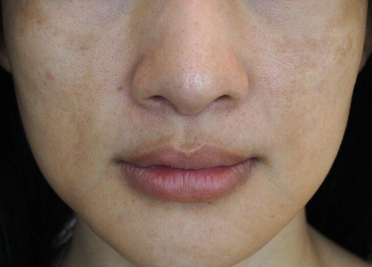secher-visage