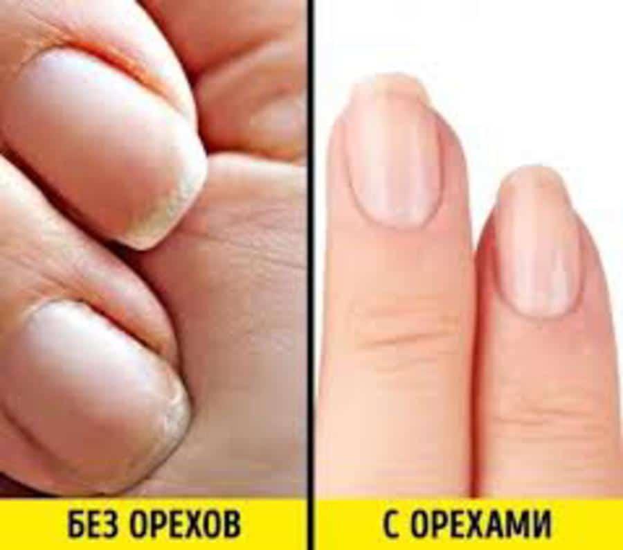 secret-beauté-ongles