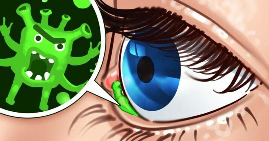 Caca-des-yeux-Pourquoi-cela-apparaît-à-notre-réveil