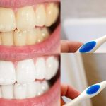 Comment-avoir-de-belles-dents-9-conseils